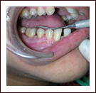 Best Dental Clinic Mumbai